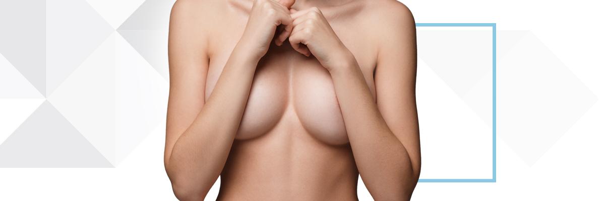 Göğüs Dikleştirme